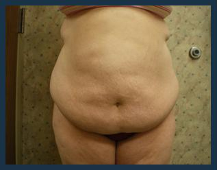 Tummy Tuck Before & After Patient #845