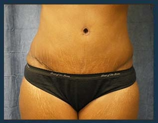 Tummy Tuck Before & After Patient #865