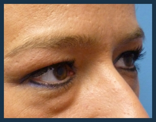 Eyelid Lift Before & After Patient #918