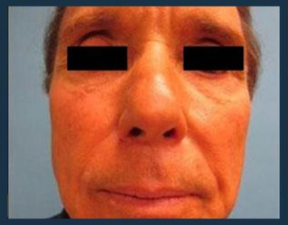 Juvederm Before & After Patient #973