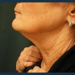 Neck Lift Before & After Patient #998