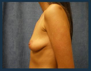 Breast Augmentation Before & After Patient #412
