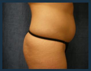 Liposuction Before & After Patient #776