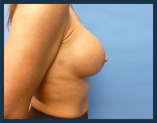 Breast Augmentation Before & After Patient #323