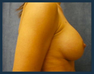 Breast Augmentation Before & After Patient #431
