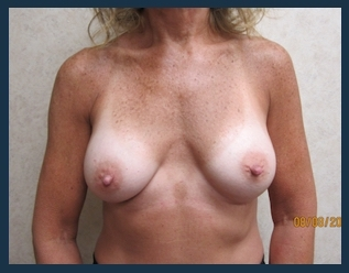 Breast Augmentation Before & After Patient #569