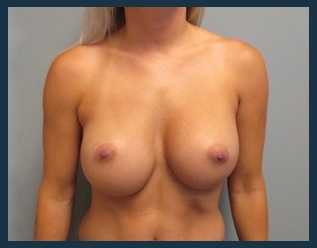 Breast Augmentation Before & After Patient #590