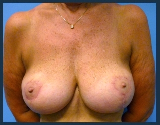 Breast Lift Before & After Patient #644