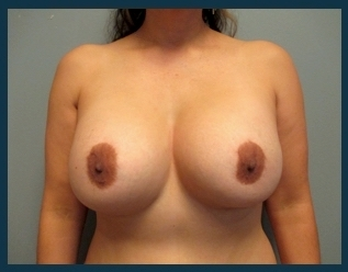 Breast Implant Revision Before & After Patient #662