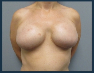 Breast Reconstruction Before & After Patient #674