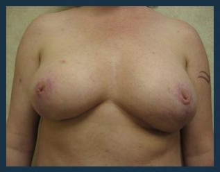 Breast Reduction Before & After Patient #700