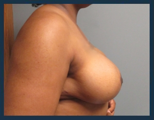 Breast Reduction Before & After Patient #711