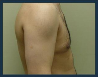Gynecomastia Treatment Before & After Patient #717