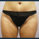 Liposuction Before & After Patient #768