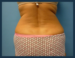 Liposuction Before & After Patient #786