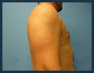 Liposuction Before & After Patient #802