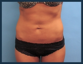 Liposuction Before & After Patient #817