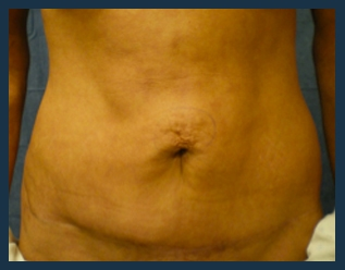 Tummy Tuck Before & After Patient #833