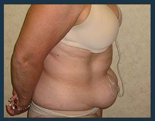 Tummy Tuck Before & After Patient #851