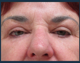 Eyelid Lift Before & After Patient #948
