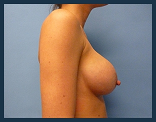 Breast Augmentation Before & After Patient #398