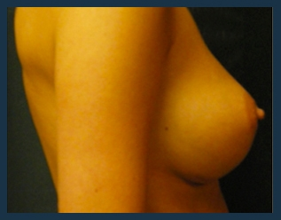 Breast Augmentation Before & After Patient #417