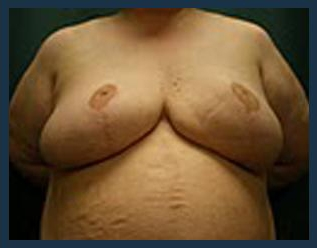 Breast Reduction Before & After Patient #703