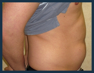 Liposuction Before & After Patient #751