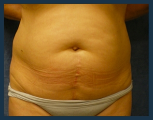 Tummy Tuck Before & After Patient #836