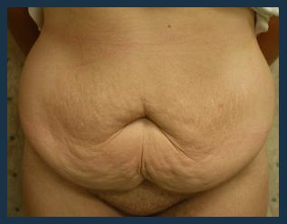 Tummy Tuck Before & After Patient #848