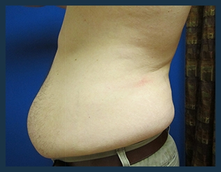 Tummy Tuck Before & After Patient #868