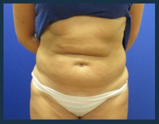 Tummy Tuck Before & After Patient #882