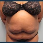Tummy Tuck Before & After Patient #902