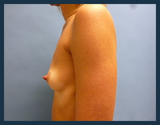 Breast Augmentation Before & After Patient #387