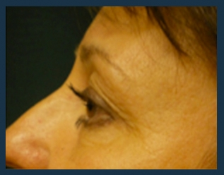 Eyelid Lift Before & After Patient #925