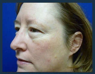 Eyelid Lift Before & After Patient #932