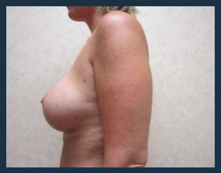 Breast Augmentation Before & After Patient #457