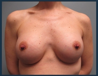 Breast Augmentation Before & After Patient #572