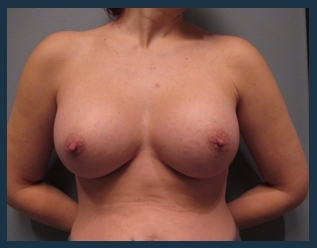 Breast Augmentation Before & After Patient #581