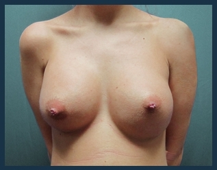 Breast Augmentation Before & After Patient #593