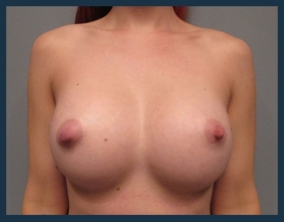 Breast Augmentation Before & After Patient #605