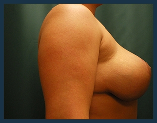 Breast Lift Before & After Patient #611