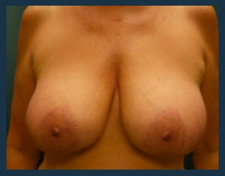 Breast Lift Before & After Patient #627