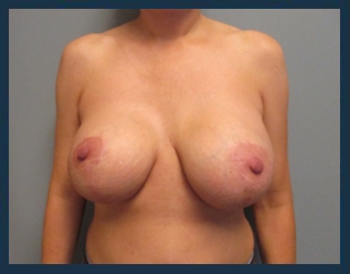 Breast Lift Before & After Patient #647