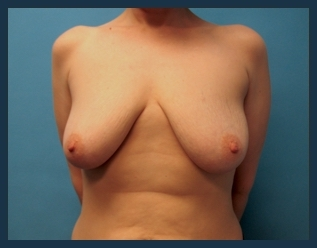Breast Augmentation Before & After Patient #584