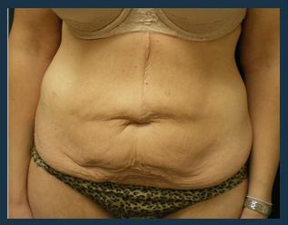 Tummy Tuck Before & After Patient #839