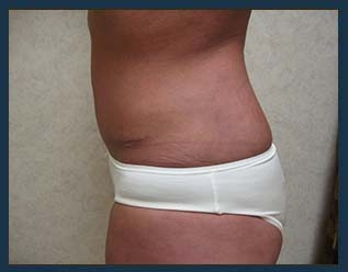 Tummy Tuck Before & After Patient #858