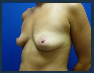 Breast Augmentation Before & After Patient #530