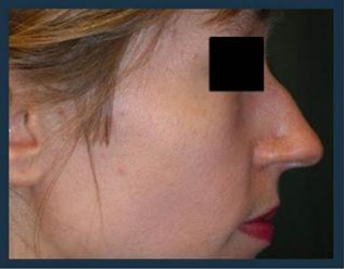 Rhinoplasty Before & After Patient #993