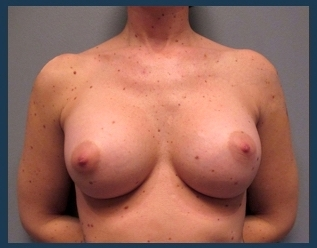 Breast Augmentation Before & After Patient #596